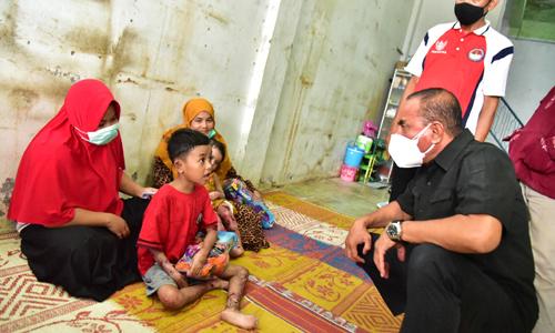 Jenguk Dua Anak Penderita Penyakit Kulit, Edy Rahmayadi Rujuk Haikal dan Zakira ke RS Haji Medan